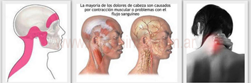 Sheynyy la osteocondrosis la irradiación del dolor